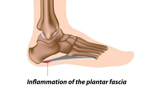 2029ab76be Plantar Fasciitis causes and symptoms - Profoot