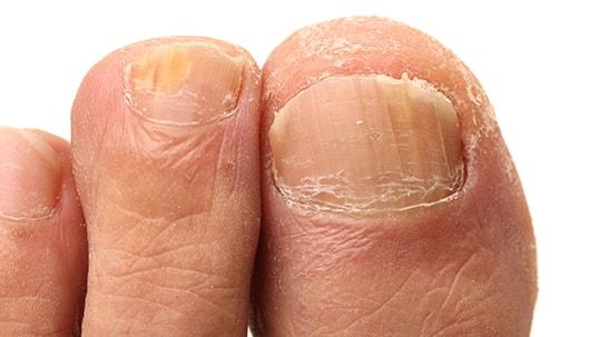 Thickened Toenails - Foot Care from Profoot